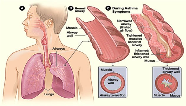 Asthma Constricts the Airways of the Lungs